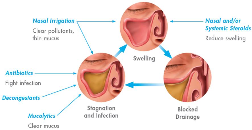 Symptoms of nasal allergies in adults