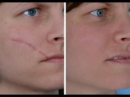 Scar treatment in Zirakpur